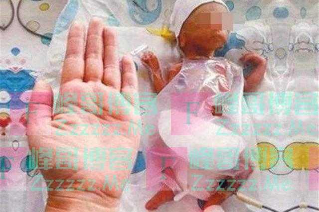 """""""全球最小婴儿""""比巴掌还小,14年过去,如今的她怎么样了"""