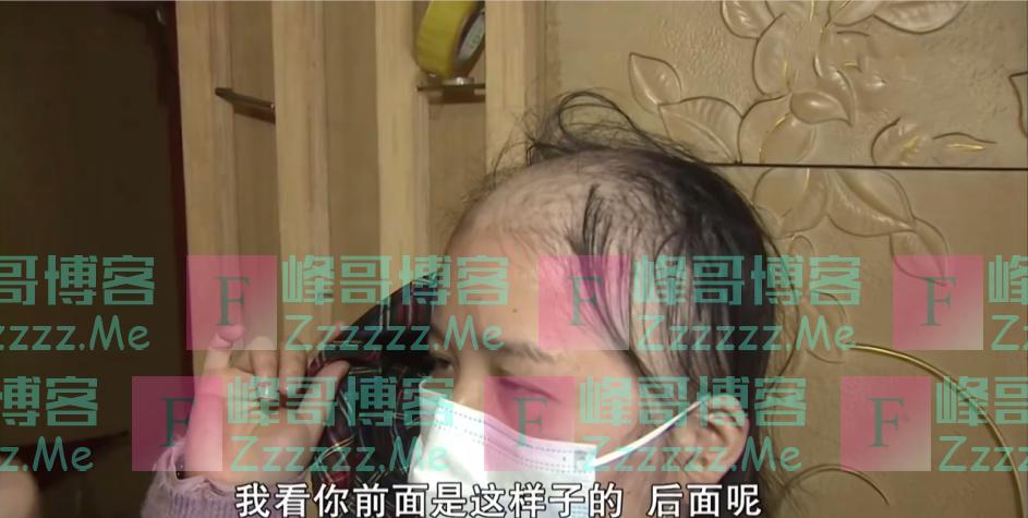 """我头发呢?女子做完养发后秀发掉光变成了""""裘千尺""""!"""