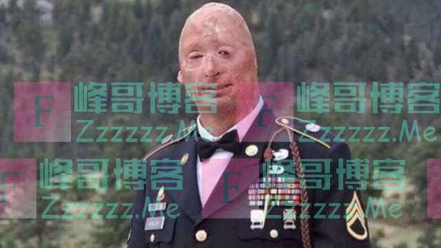 自己照片被人用于反特朗普文宣,美国毁容退伍兵表示不满