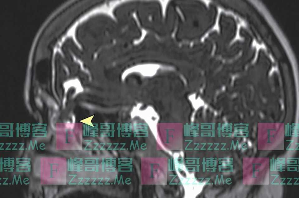 美国一40岁女子做新冠核酸检测,一捅鼻子却当场流出脑脊液