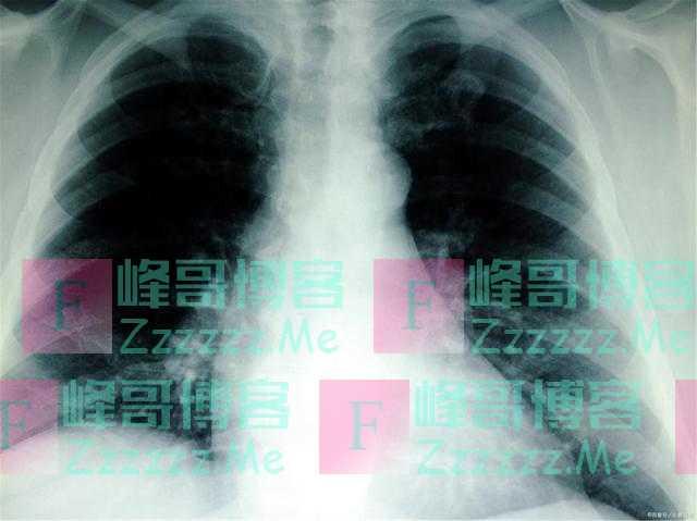 """尼古丁""""很怕""""一种水,如果每天喝几杯,有益于肺部"""