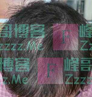 """""""我控制不住啊!""""14岁女孩拔头发上瘾,背后原因让人唏嘘"""