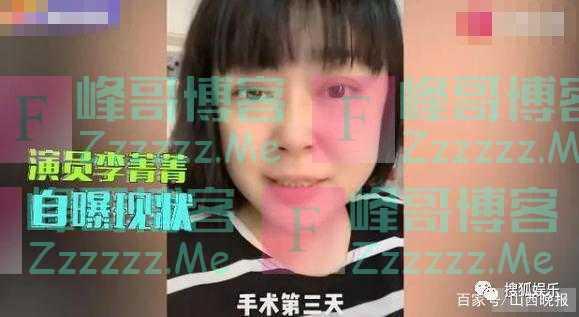 李菁菁自曝患乳腺癌 已完成手术